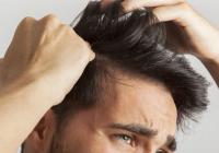 Caída del cabello por estrés, enfermedades graves, cirugía, déficit vitamínico o parto.