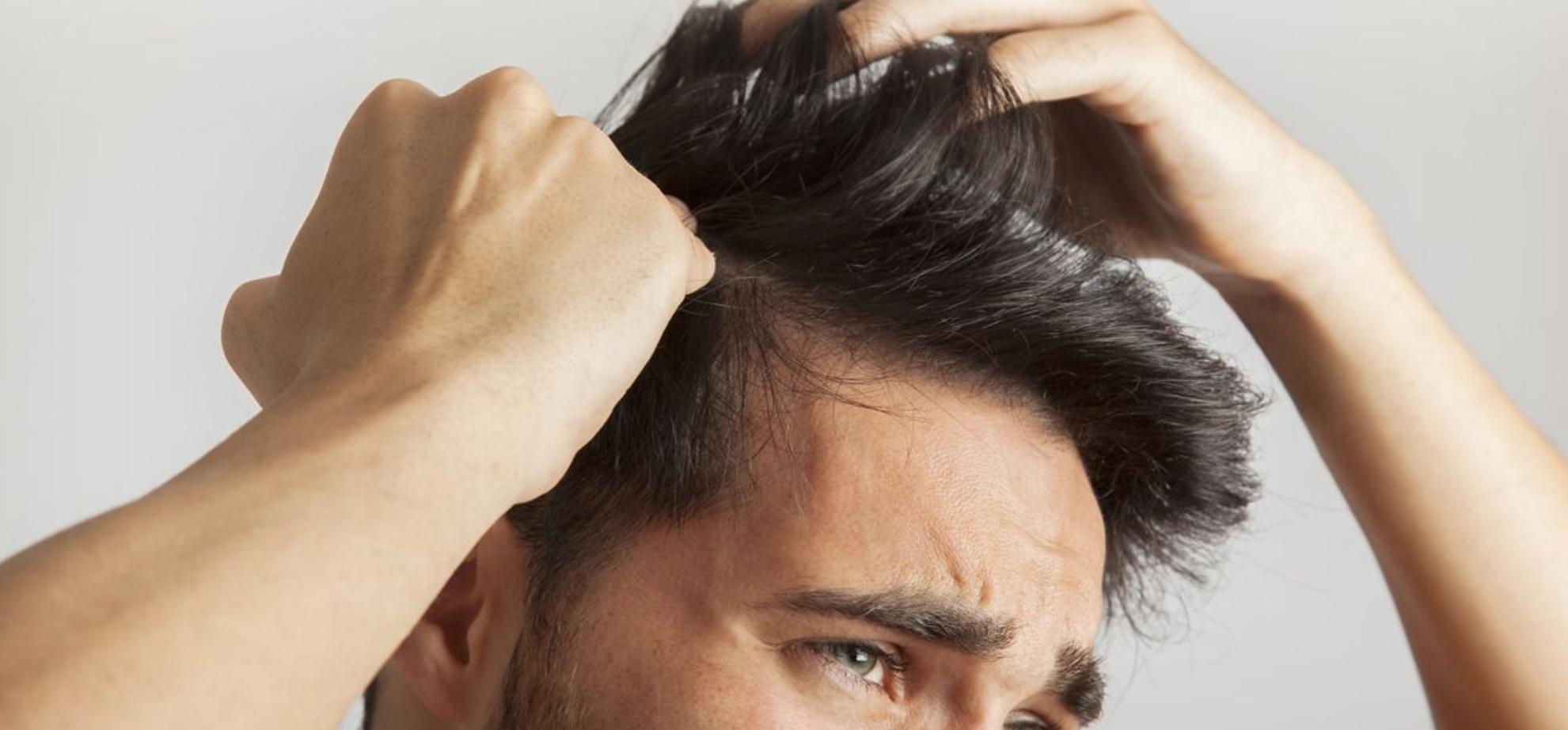 (Español) Confinamiento y caída del pelo