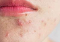 El maskné es la aparición de pequeños granitos de pus en la zona perioral.